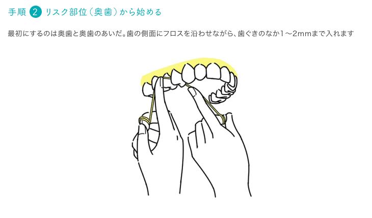 フロス説明2